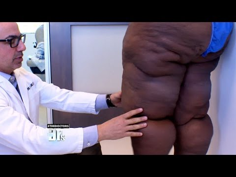 Surprise for Woman with Excess Skin and Lipedema