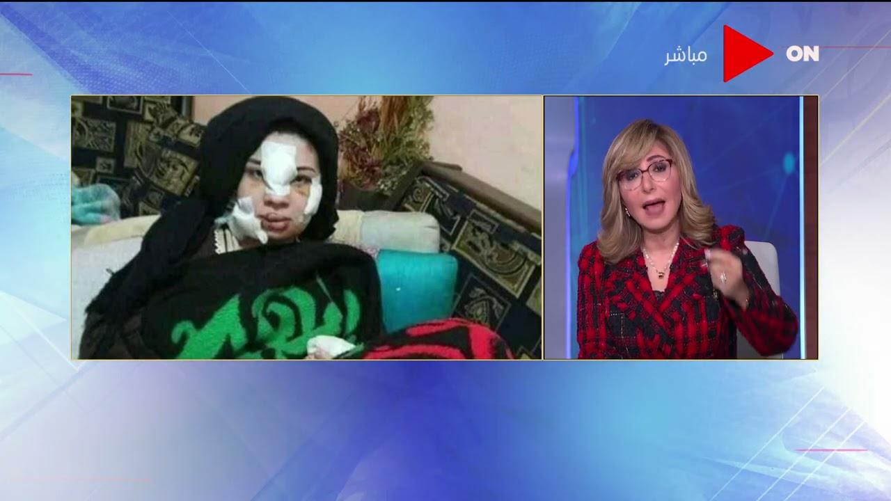 كلمة أخيرة - الفقرة الثالثة - إسراء عماد ضحية جديدة للعنف ضد المرأة من زوجها