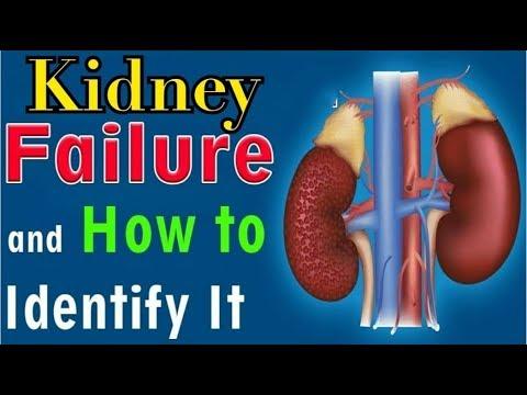12 Senyales ng Sakit sa Kidney o Bato - Payo ni Doc Willie Ong #734