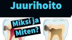 Juurihoito. Miksi hammas pitää juurihoitaa, ja mitä vaiheita juurihoitoon liittyy?