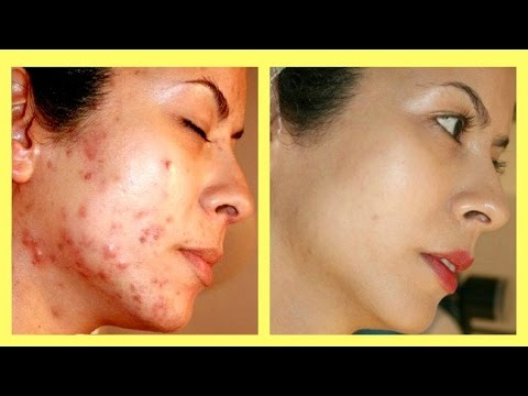 Top Ways How To Get Rid Of Acne Scars Overnight Naturally At Home