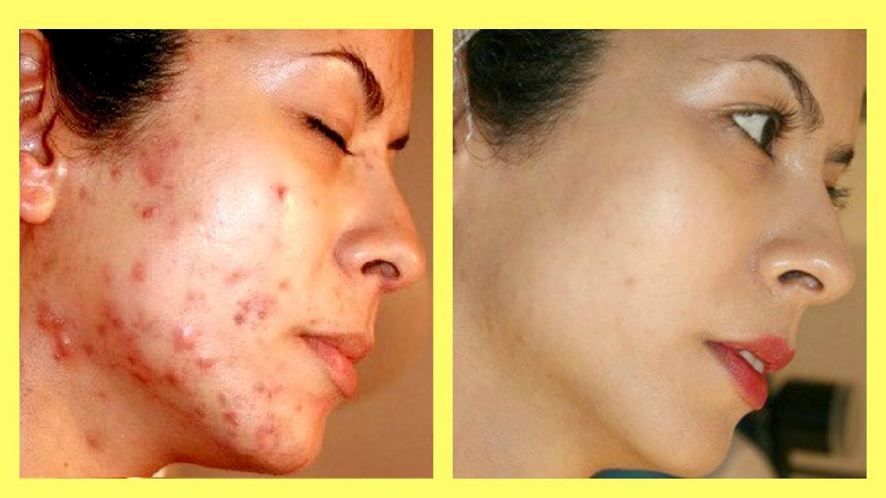 How to make acne scars go away overnight