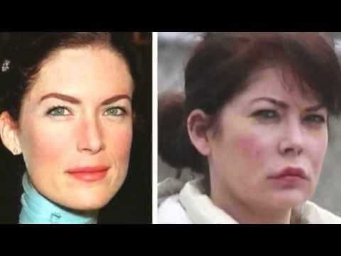 Lara Flynn Before and After Plastic Surgery Photos