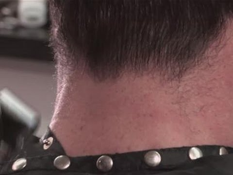 Pin on Hirsute |Hairy Back And Neck