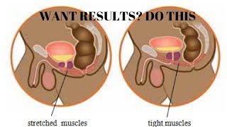 pelvic floor and kegel exercises for men