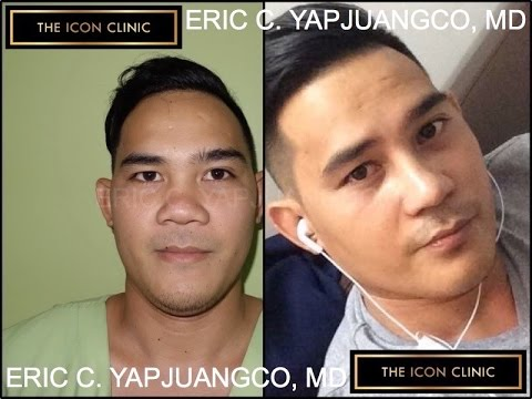 Nose Lift Philippines - Before and After Shots
