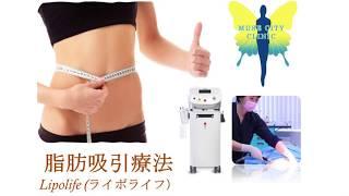 脂肪吸引療法 Lipolife (ライポライフ)