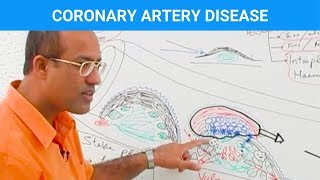 Coronary Artery Disease - Ischemic Heart Disease - Angina