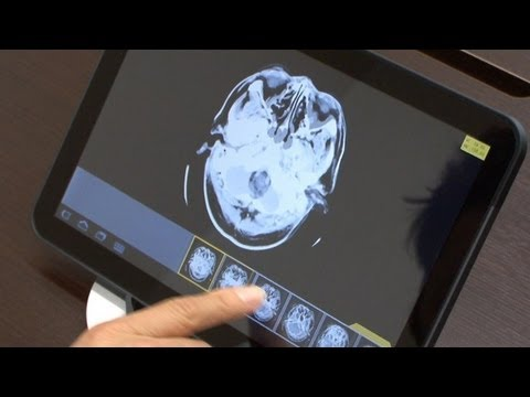 Fast, Secure Transmission Of Medical Images To Smartphones And Tablets #diginfo
