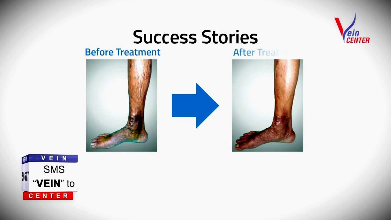 how i cured my varicose veins