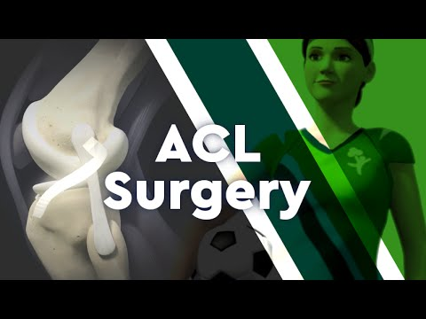 Download What is ACL Surgery?