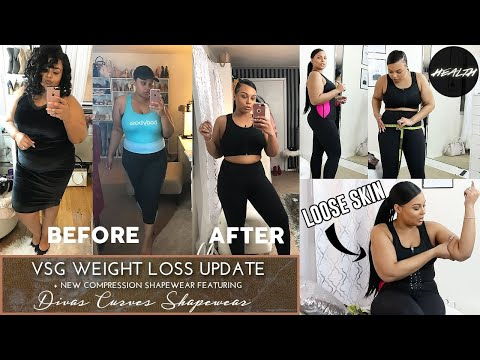 11 MONTH VSG WEIGHT LOSS UPDATE!! & COMPRESSION SHAPEWEAR TRY ON HAUL