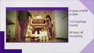 Ohio has 4 cases of mysterious AFM illness striking children