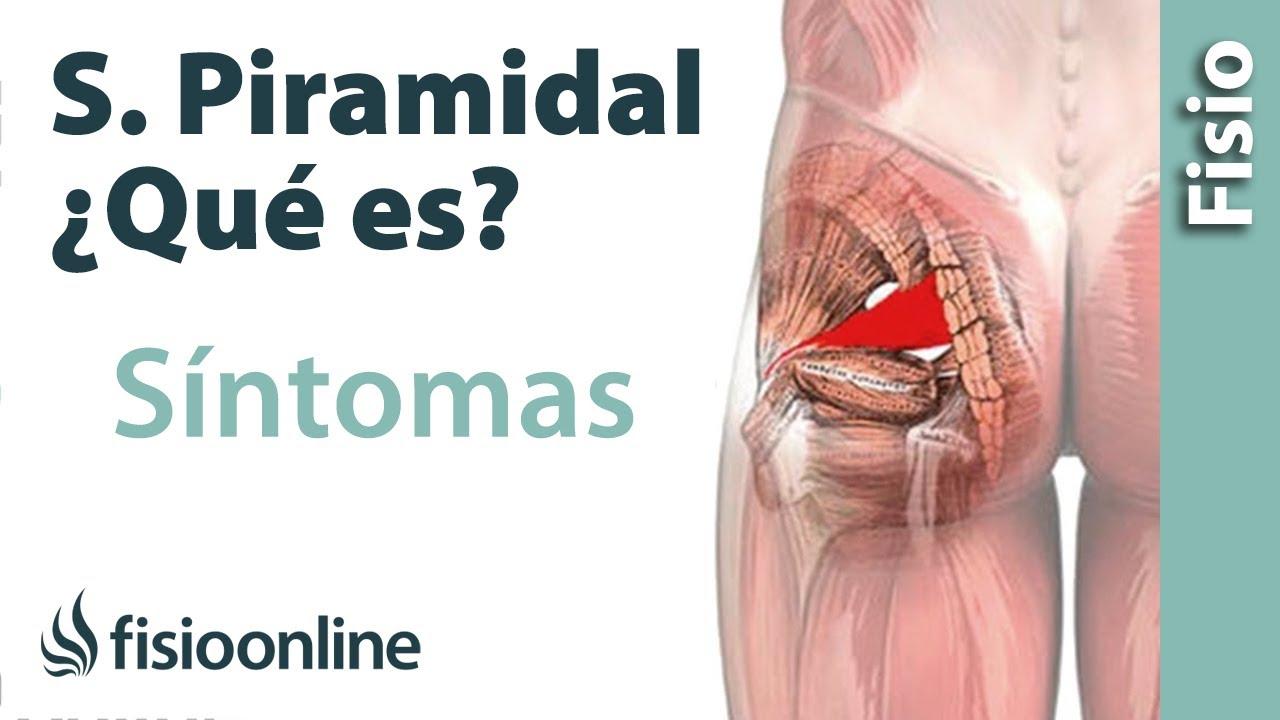 Qué es el síndrome del músculo piramidal y cuáles son sus síntomas y ...