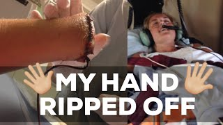 The Day I Almost Died | My Hand Ripped Off