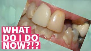 HELP...I Broke My Tooth