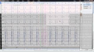 Программа анализа суточного ЭКГ холтер HEACO
