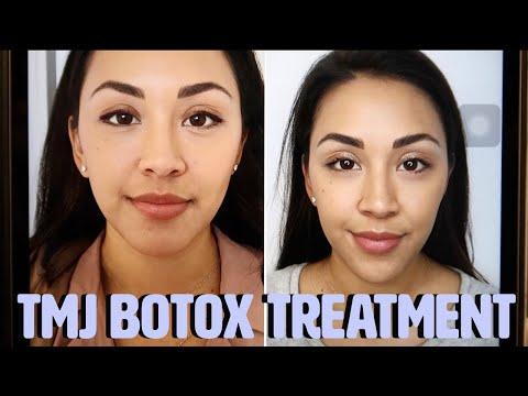 Botox Treatment For Tmj Lesacatriesstuff Youtube