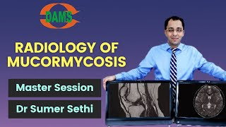 Radiological Findings In Mucormycosis By Dr Sumer Sethi