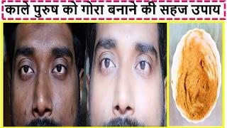 Face Mask For MEN / Man Get FAIR BRIGHT SPOTLESS Skin In Hindi