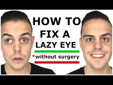 How to Fix a Lazy Eye With One Crazy Trick