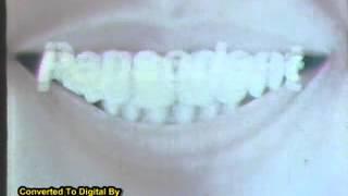 iklan Pepsodent Jadul Tahun 1979
