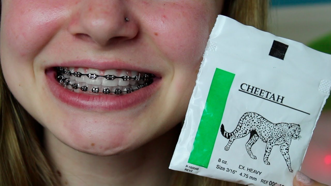 Braces Rubber Bands Life Hacks Youtube