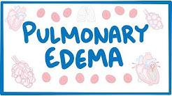 hqdefault - How Does Kidney Failure Cause Pulmonary Edema