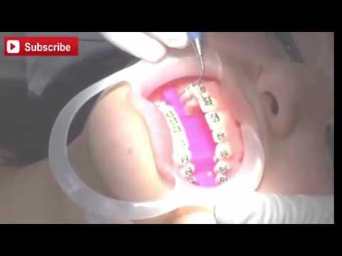 Pemasangan Behel Gigi atau Kawat Gigi behel