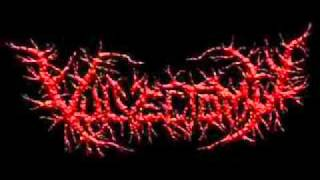 Vulvectomy-Pusfull Hymen Lignified