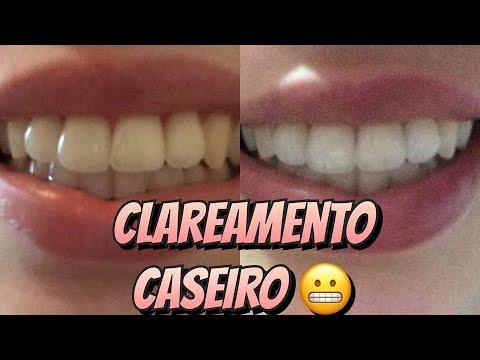 Como Clarear Os Dentes Com Limao E Bicarbonato De Sodio