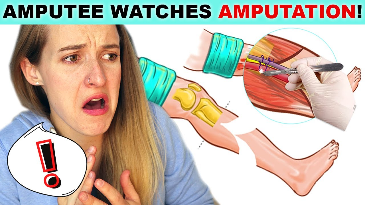 Amputee Watches AMPUTATION SURGERY!