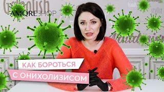 Онихолизис Отслоение ногтей Причины появления Как бороться с онихолизисом Ксения Чумак