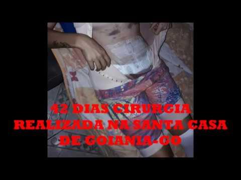 Liposucci 243 N Abdominoplastia Asombrosos Resultados Dr To