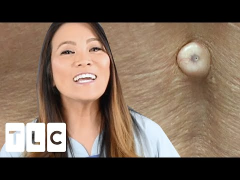 """""""You Can Pop Them Out Nicely"""": A Spine-Tingling Cyst   Dr Pimple Popper: This Is Zit"""