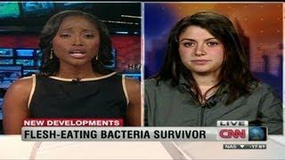 Surviving flesh-eating disease
