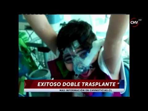 Niño que trasplantado de pulmones por fibrosis quística fue dado de ...