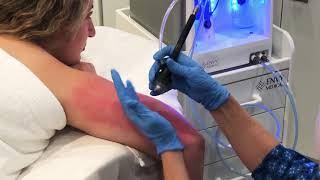 Check your skin for actinic keratosis today.