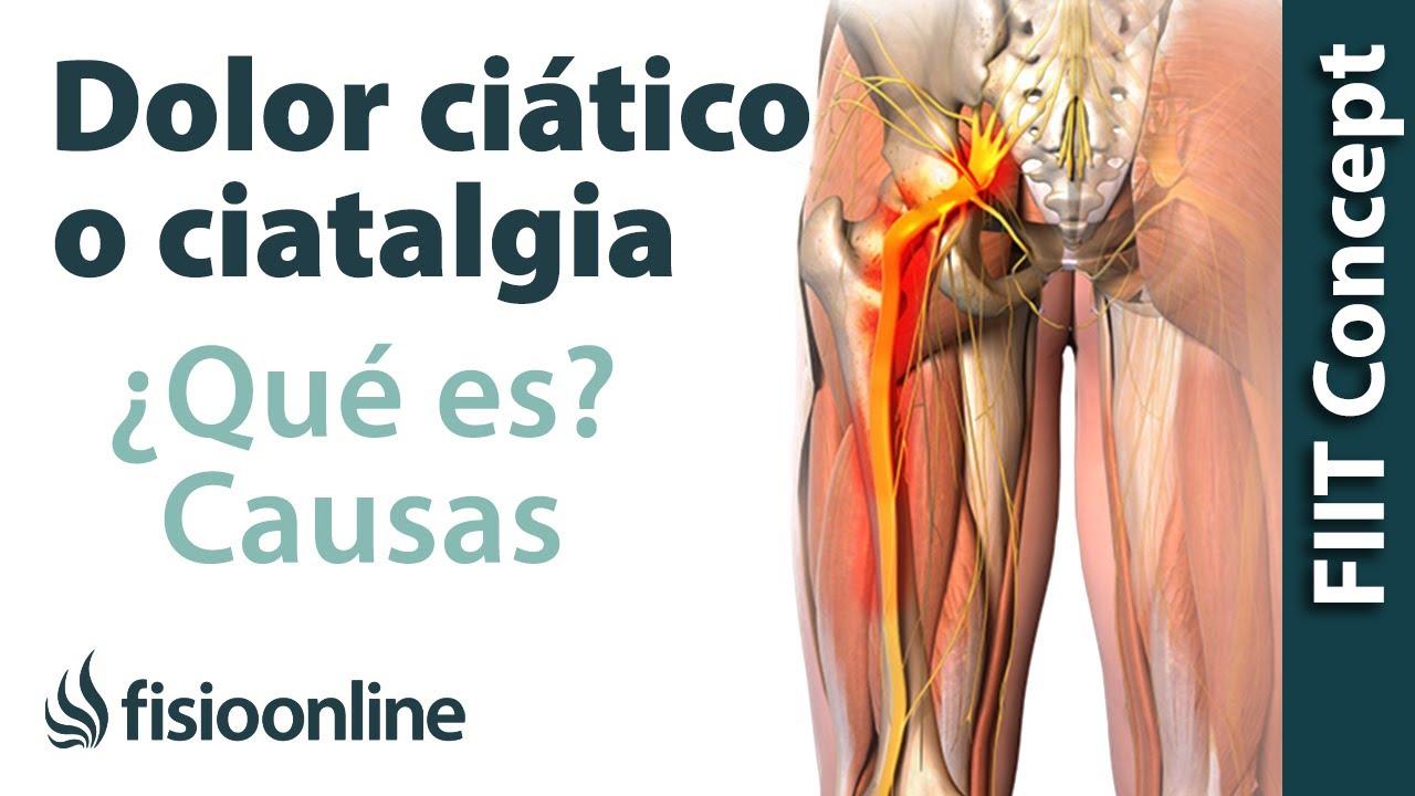 dolor de pierna causado por el nervadura ciatico