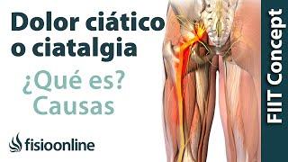 Ciática debilidad muscular