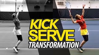Kick Serve Transformation | POWER & SPIN Tennis Lesson