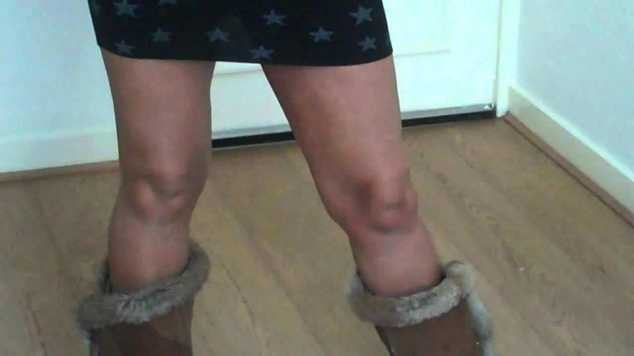 Thread Veins and scars on legs covered with Take Cover Skin System ...
