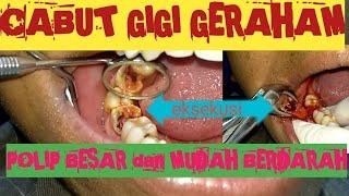 Hati-Hati Radang Pulpa Gigi/ Pulpitis!! #Edukasi.