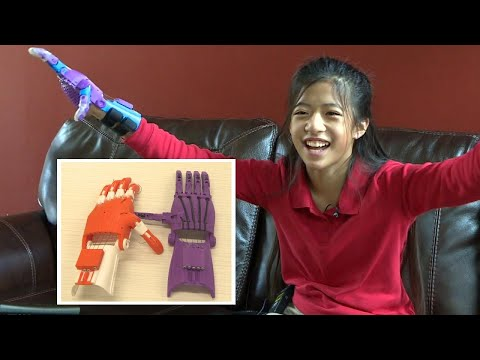 None - Good News: 11 Year Old gets 3D Printed Hands