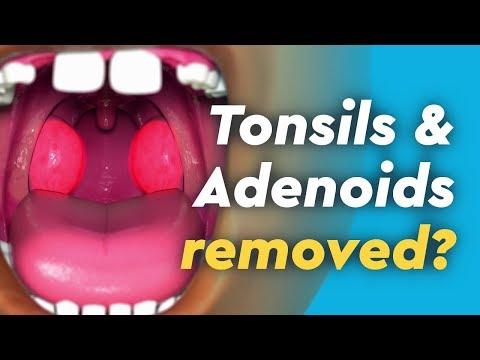 Tonsils and Adenoids Surgery