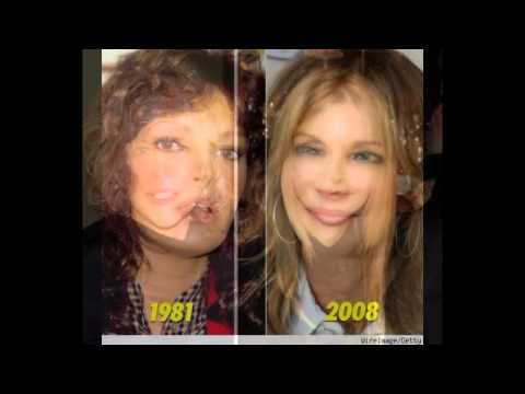 Jacqueline Smith plastic surgery before and after photos