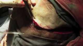 Операция Трепанация черепа Удаление опухоли головного мозга. 18+