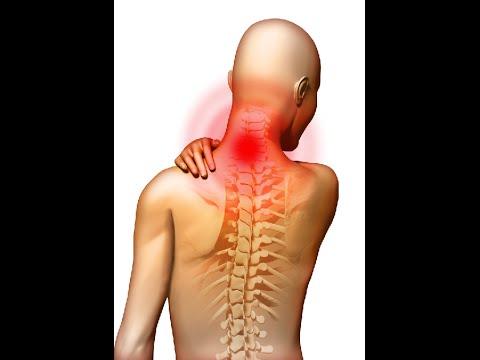 Как лечить хондроз позвоночника спины