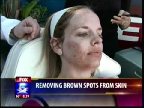 Remove Brown Skin Spots - Dr. William Groff - Fox 5 News