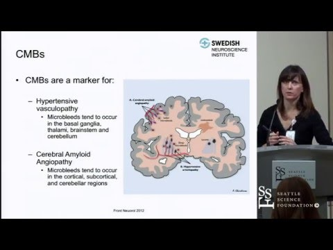 Cerebral Microbleeds, Cerebral Amyloid Angiopahthy and Their Clincial Relevance by Sheila Smith, MD